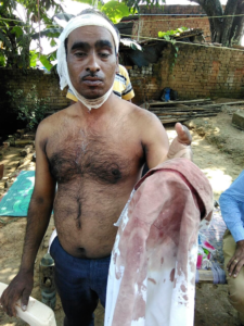 Pastor Kurre after his attack (World Watch Monitor)