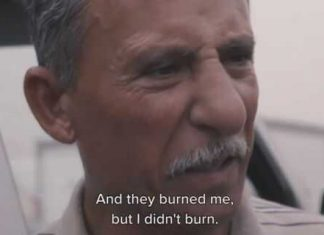 Iraqi Christian Survives Being Burned Alive By ISIS