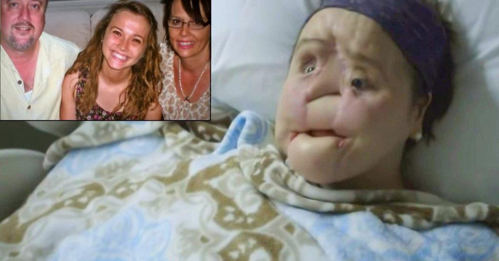 Suicide Survivor Katie Stubblefield New Face