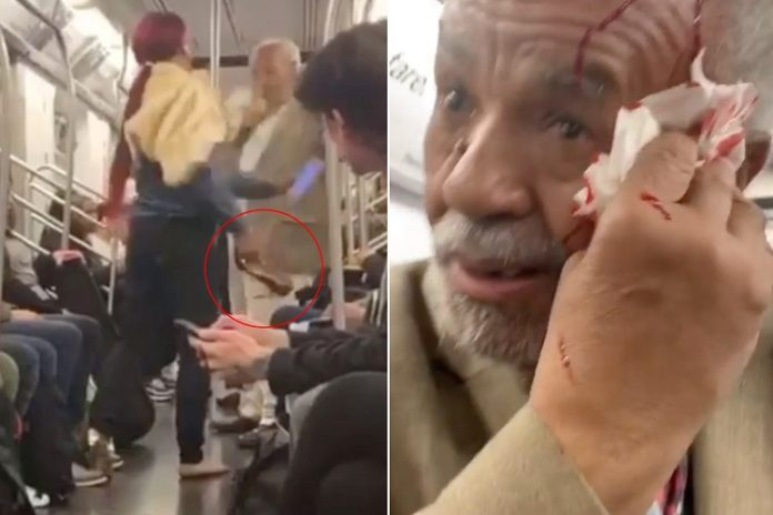 Woman Breaks 79-Year-Old Man's Head With High Heel Shoe For Preaching Inside Train